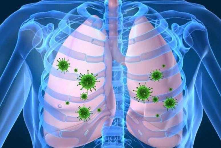 bacterias en los pulmones